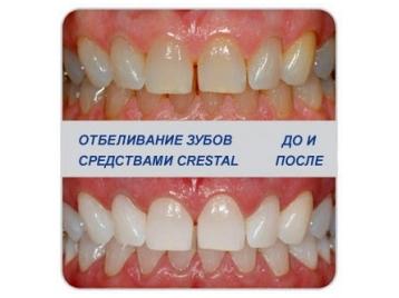 Сколько болит зуб после пломбирования и где его лучше